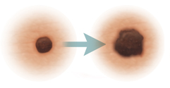 Skin lesions showing evolution of skin cancer.